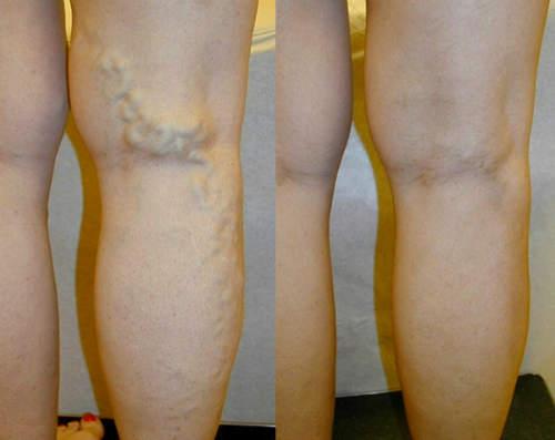 picioarele tratează de la varicoză